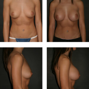 Hips and breast Enlargement